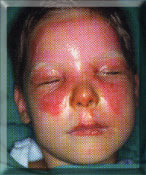 Thermischer Verletzung durch heißes Öl Thermal injuries caused by hot oil Thermique à l'huile bouillante